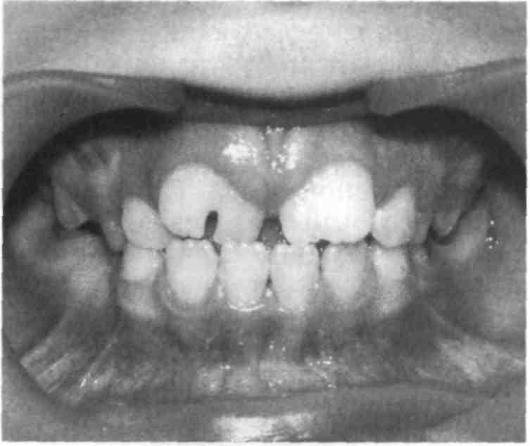 Если нет нескольких зубов что.делать
