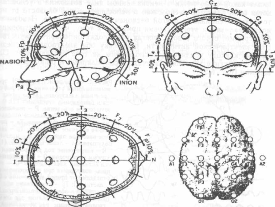 """10 Международная схема расположения ЭЭГ-электродов  """"10—20%  """" (справа-внизу - схема для..."""