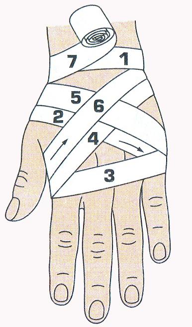 Схемы повязкой на кисть